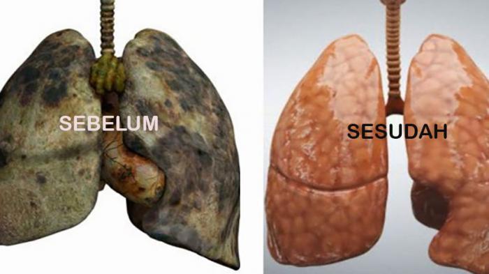 paru-paru-sebelum-dan-sesudah_20150627_143203