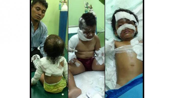 bocah-bocah-korban-ledakan-bom-di-gereja-di-samarinda_20161113_151239